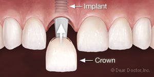 An illustration of a crown being placed on an implant fixture