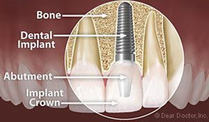 An illustration of a dental implant with text explaining its parts