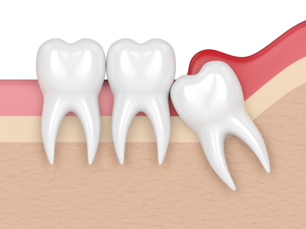 wisdom mesial impaction with pericoronitis. Concept of different types of wisdom teeth problems.