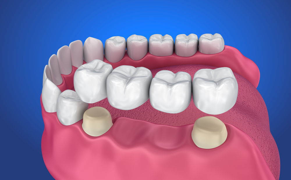 A scientific diagram of the dental bridge process. Four molar teeth are above the gums, showing the bridge device that will hold your restoration in place.