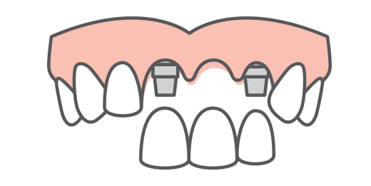 dental bridge with implants
