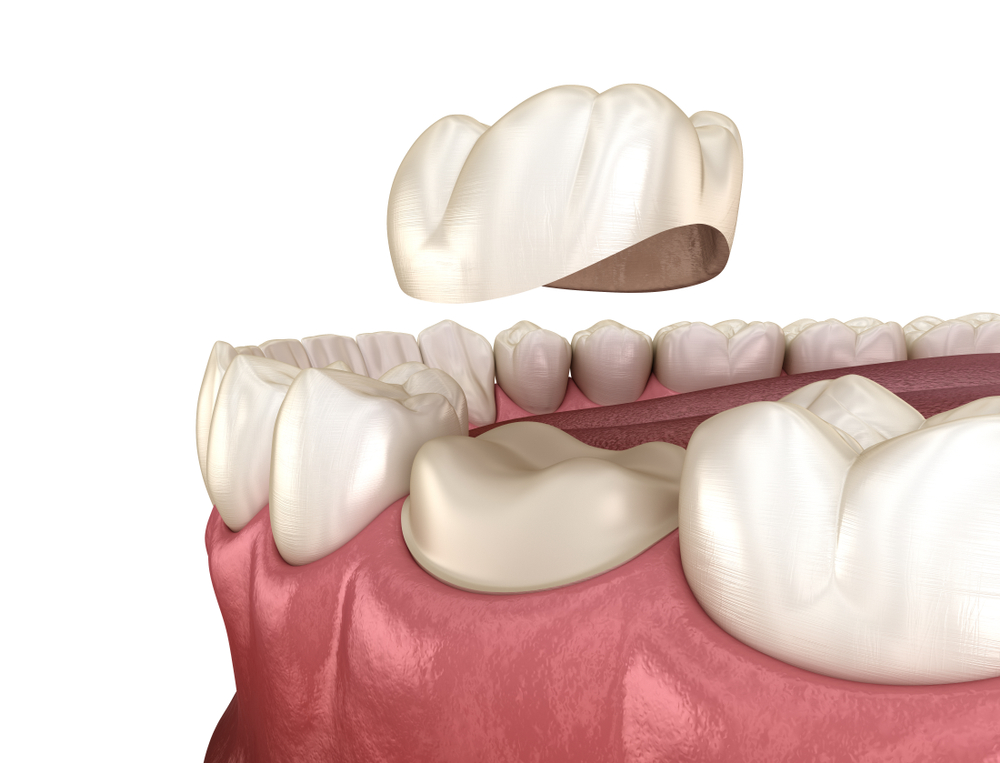 A 3-D rendered illustration of a worn-down tooth being replaced by a crown